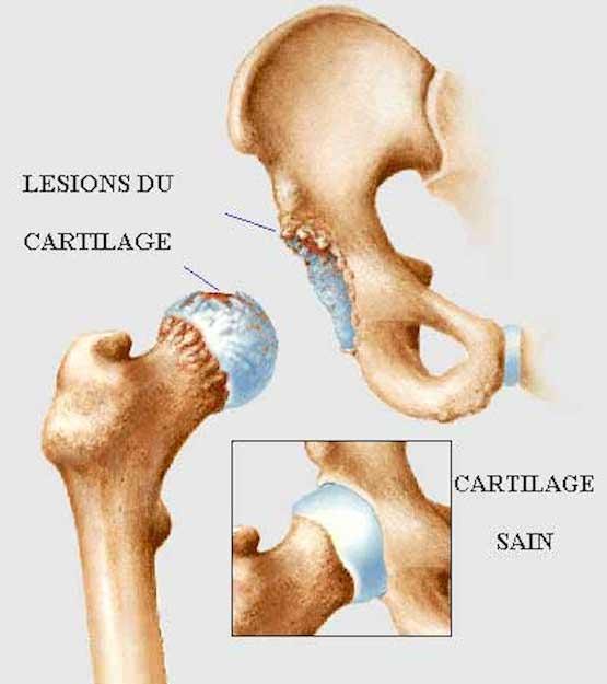 Arthrose et ostéopathie